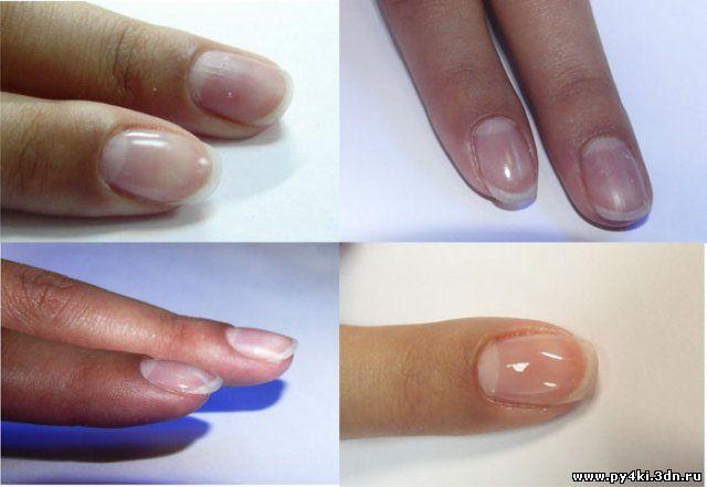 Биогель – последняя новинка ногтевой индустрии